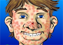 Acne be gone Game